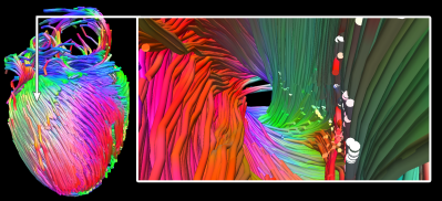 ex-vivo tractography of mouse heart