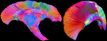 tractography of kidney tubules